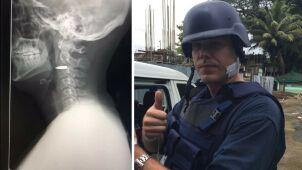 Dziennikarz postrzelony na Filipinach.  Przeżył i pokazał zdjęcie z rentgena